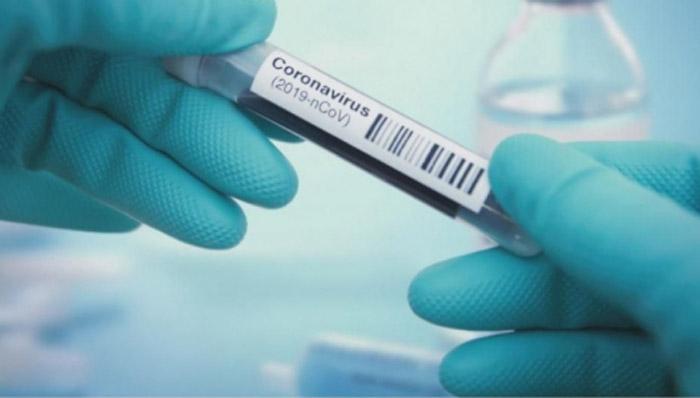 293 са случаите на COVID-19 в България, 8 са в тежко състояние