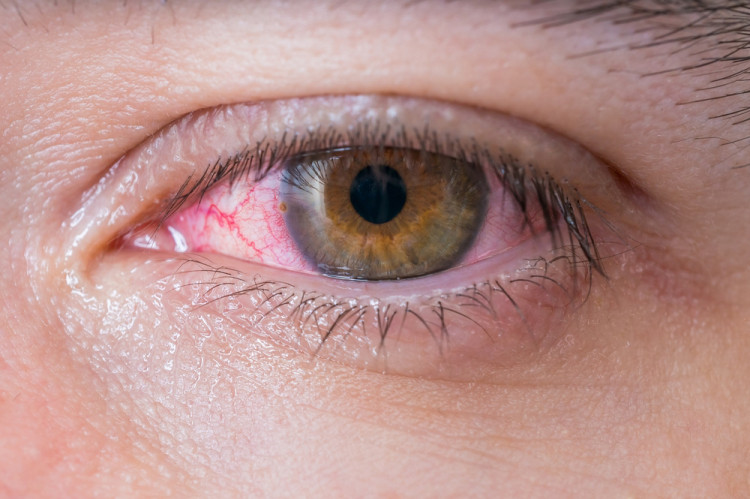 Опасен ли е кръвоизливът в окото?