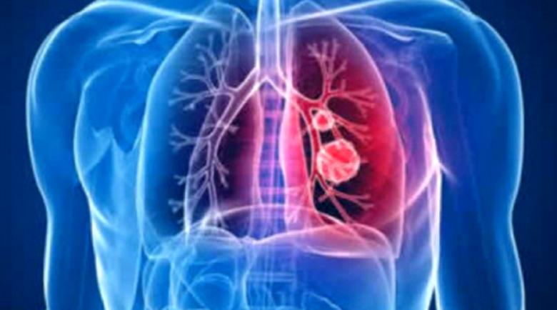 Седем признака, че сте развили пневмония