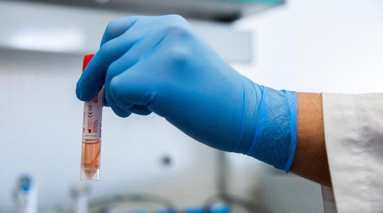 143 нови с коронавирус след 3163 PCR теста