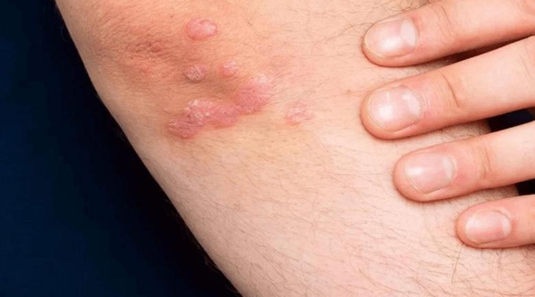 Псориазисът удря не само кожата, но и костите