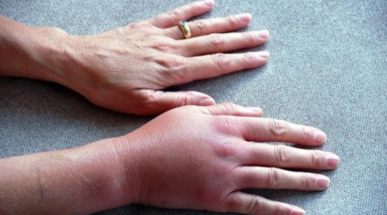 Подуването на пръстите може да е опасно