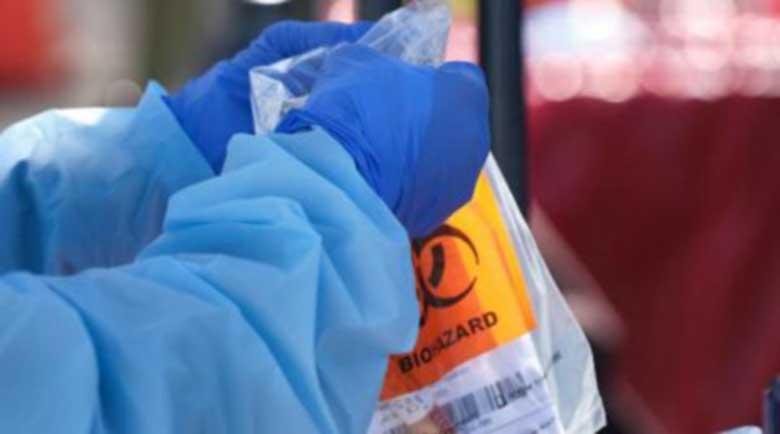 178 нови смъртни случая от COVID-19 във Франция