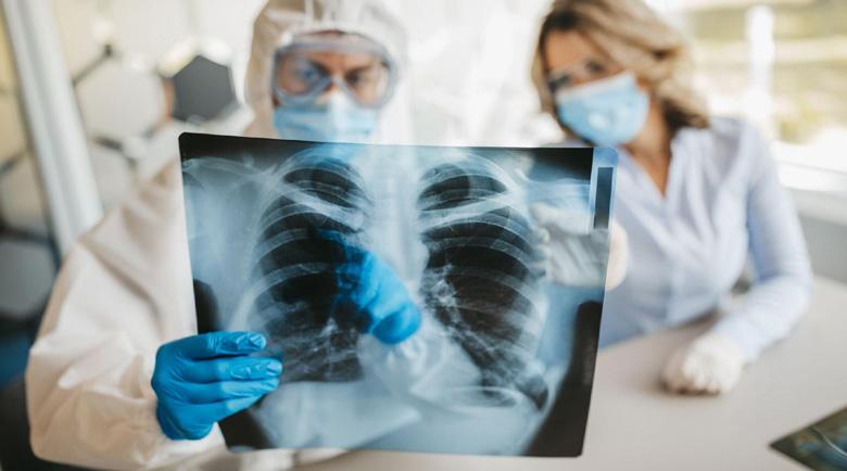Всеки пети с коронавирус получава увреждания на белите дробове, сърцето и съдовете